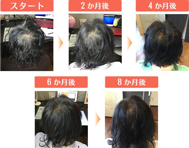 50代女性|びまん性による薄毛のビフォーアフター