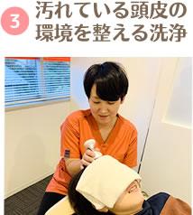 汚れている頭皮の環境を整える洗浄